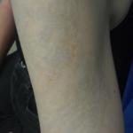 tatuaż po użyciu lasera